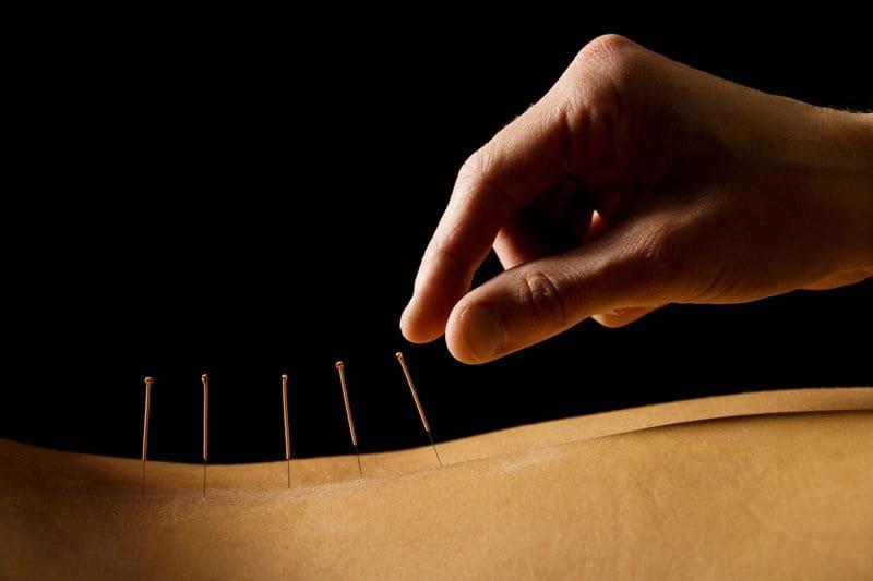 acupuntura valencia
