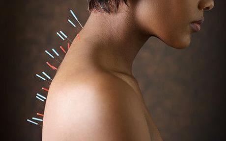 La ciencia detrás de la acupuntura
